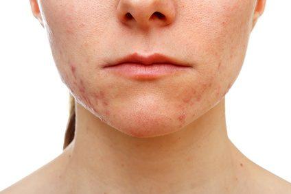 acné sur le visage