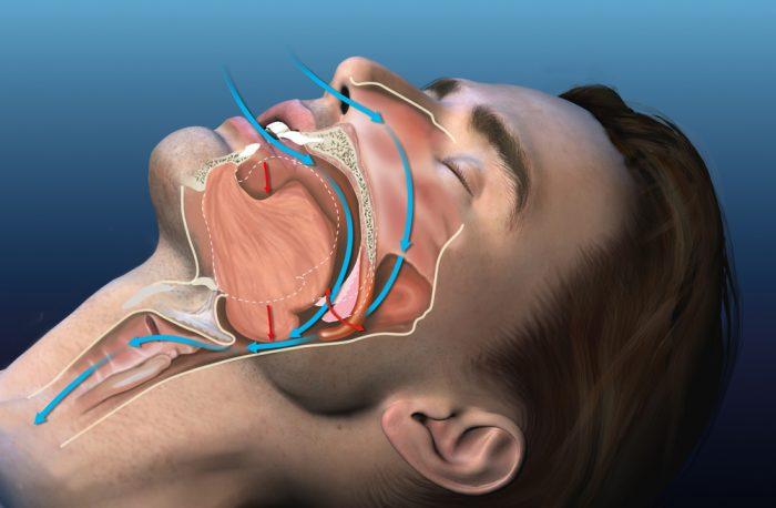 Schéma interne d'un ronfleur
